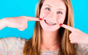 Aparelho Dentário Superior e Inferior com tudo incluído por apenas 21€!