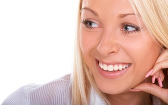 Implante Dentário de Titânio por 250€ na Estefânia!