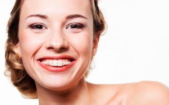 Aparelho Dentário com Oferta de Passe 5 Dias para MEO Sudoeste por 99€ em Telheiras!