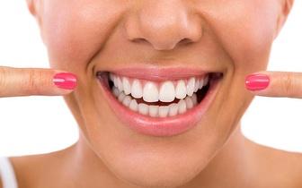 Branqueamento Dentário com Luz Led por 15€ na Quinta do Conde!