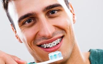 Aparelho Dentário Fixo Metálico Inferior e Superior apenas 25€ em Alverca!