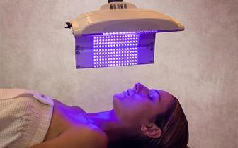 Fototerapia para Remoção de Derrames e Varizes por 12€ em Gondomar!