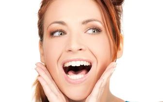 Aparelho Fixo Dentário Superior + Inferior por 39€ em Moscavide!
