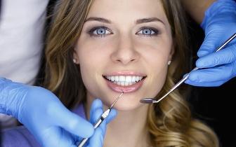 Branqueamento a Laser + Limpeza Dentária por 52€ em Alvalade!