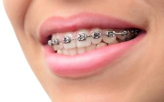 Aparelho Dentário Clássico por 39€ em Massamá!