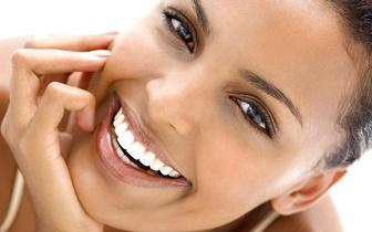 Forretas Branqueamento Dentario Com Moldeiras Por 89 Em Picoas