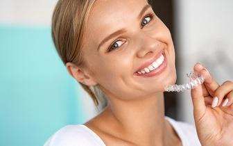 Branqueamento Dentário para fazer em casa com moldeiras por 65€  no Bairro Alto!