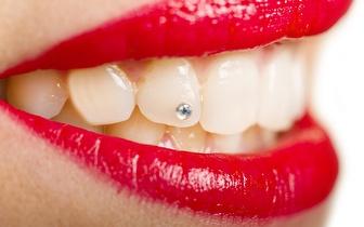 Brilhante Dentário by Swarovski por 15€ na Reboleira!