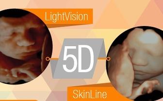 Ecografia Emocional 5D + CD com Fotos + 3 Fotos Impressas por 99€ no Parque das Nações!