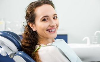 Aparelho Dentário Superior + Inferior por 28€ na Amadora!