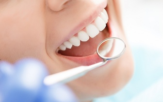 Limpeza Dentária: Polimento + Destartarização + Flúor por 19€ na Boavista!