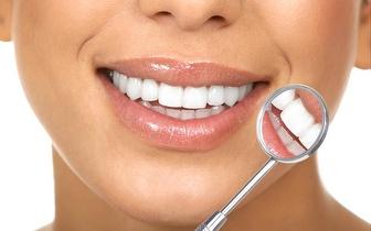 Consulta Check up + Limpeza Dentária por 15€ na Tapada das Mercês!