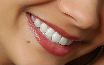 Obtenha agora um sorriso perfeito! Implante Dentário de Titânio, por apenas 259€