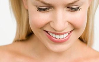 Limpeza Dentária: Avaliação + Destartarização + Polimento + Flúor, apenas 12€ em Almada!