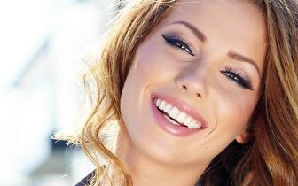 Sorriso Perfeito: Consulta de avaliação + Aparelho ortodôntico + Branqueamento Laser por 39€!
