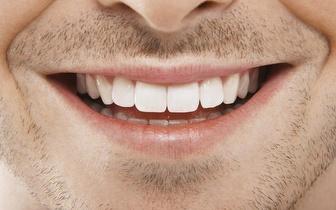 Limpeza Dentária: Check-up + Destartarização + Polimento + Aplicação de Flúor por 15€, em Benfica!
