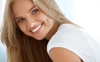 Consulta de Higiene Oral Completa + Branqueamento LED por apenas 33,90€ em Algés!