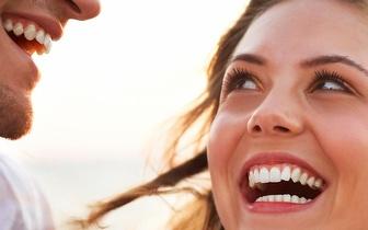 1 Implante Dentário de Qualidade Superior por 350€ no Saldanha!