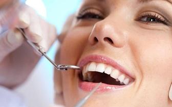 Limpeza Dentária: Check-Up + Destartarização + Polimento por apenas 10€ no centro do Porto!