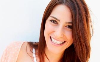 Limpeza Dentária + Branqueamento Dentário por 46€ no Lumiar!