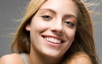 Limpeza Dentária: Destartarização com Polimento e Flúor por 19€ em Linda-a-Velha!