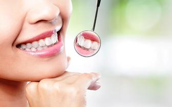 Limpeza Dentária + Destartarização + Check Up, apenas 15€ em Vila Nova de Gaia!